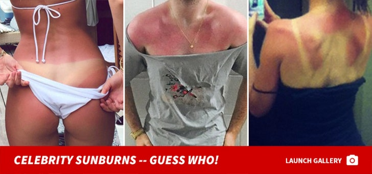 Celebrity Sunburns -- Guess Who!