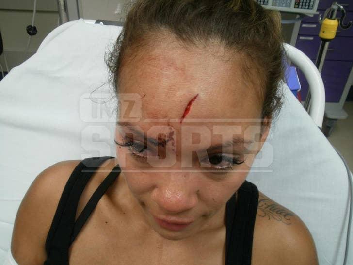 Evelyn Lozada's Head Injury