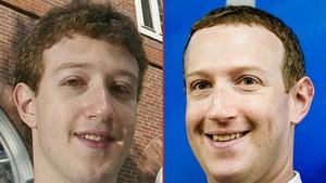 Mark Zuckerberg -- Good Genes or Good Docs?!