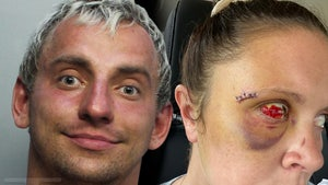 Brutal Injury Photos from YouTuber Vitaly's Alleged Attack On Woman