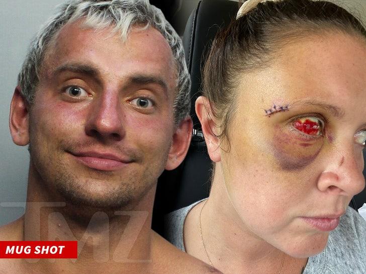 היוטובר האמרקאי רוסי ויטלי זדורבסקי נעצא במיאמי לאחר שצרך סם מפטרית הזיות ותקף אישה באמצע הרחוב F996f1b3615d46798382d8a143f180c4_md