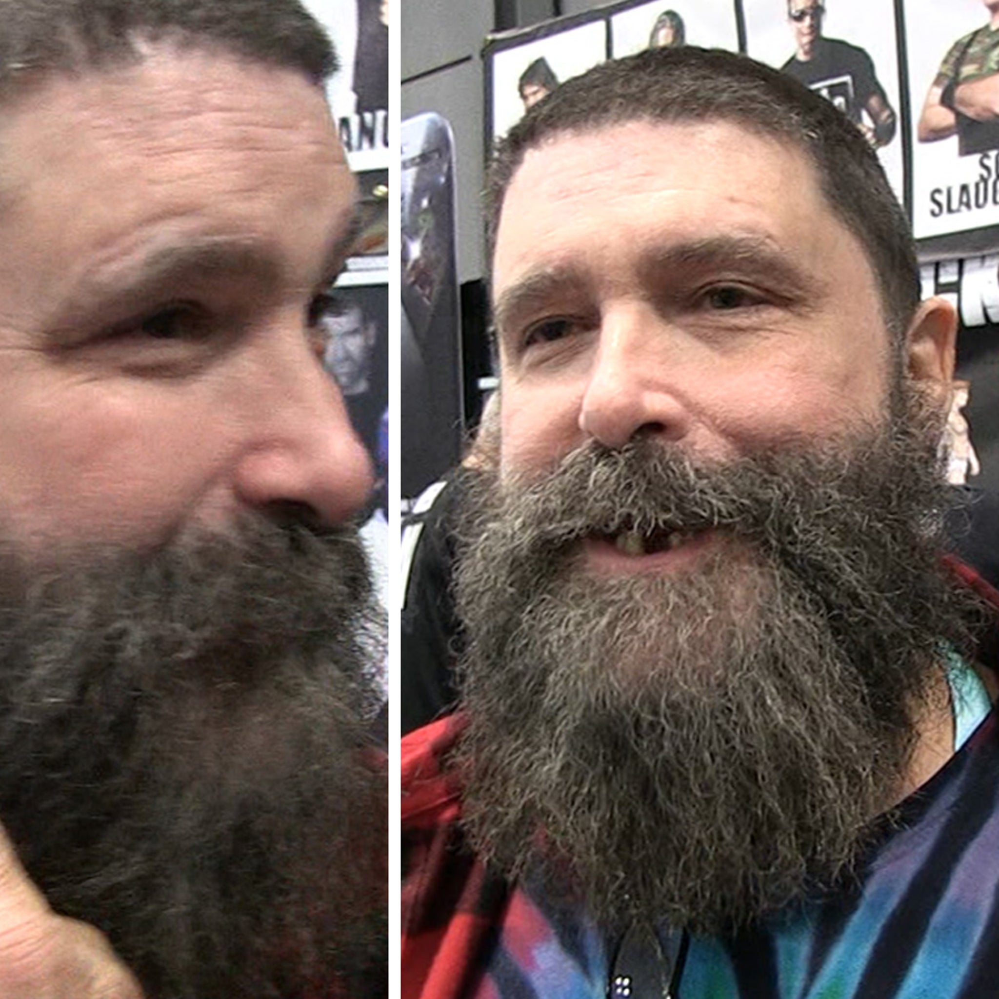 Mick Foley Shows Off Ear That Vader Famously Ripped Off, Still Not Repaired!
