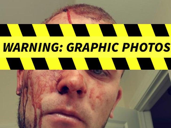 Kyle Hadala's Alleged Injuries