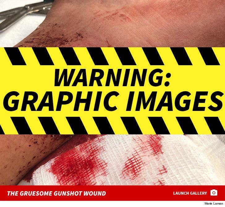Kyle Laman's Graphic Gunshot Wound Photos